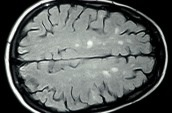 MS lesions on braind