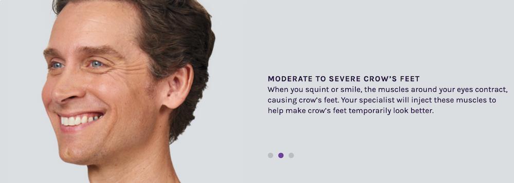 Botox Crow Lines