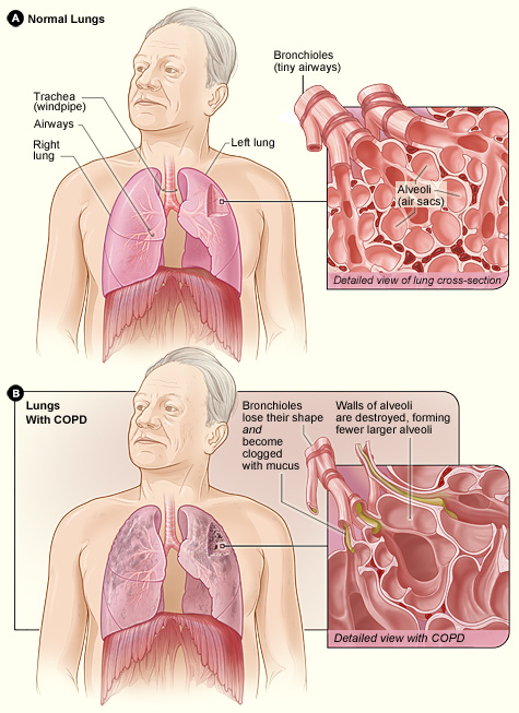 COPD_Lung_Changes_Graphic
