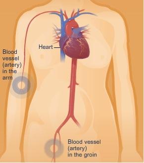 Cardiac Catheterization Insertion Sites