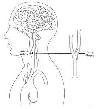 Carotid_Artery_Plaque
