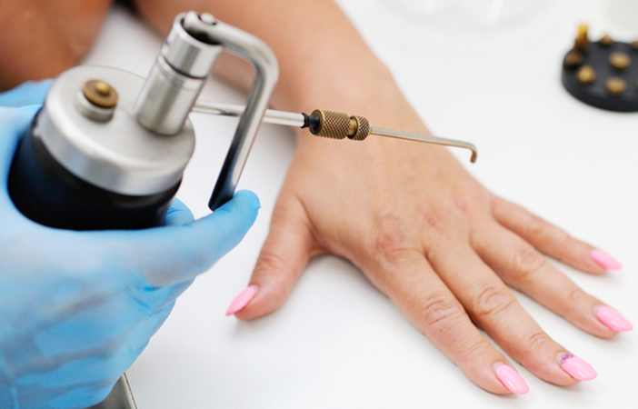 Cryotherapy for skin lesions