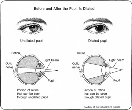 eye pupil dilation