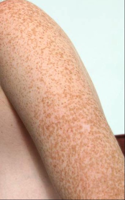 Freckles on Arm