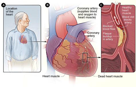 Figure A shows the location of the heart in the body. Figure B is an overview of a heart and coronary artery showing damage (dead heart muscle) caused by a heart attack. Figure C is a cross-section of the coronary artery with plaque buildup and a blood clot