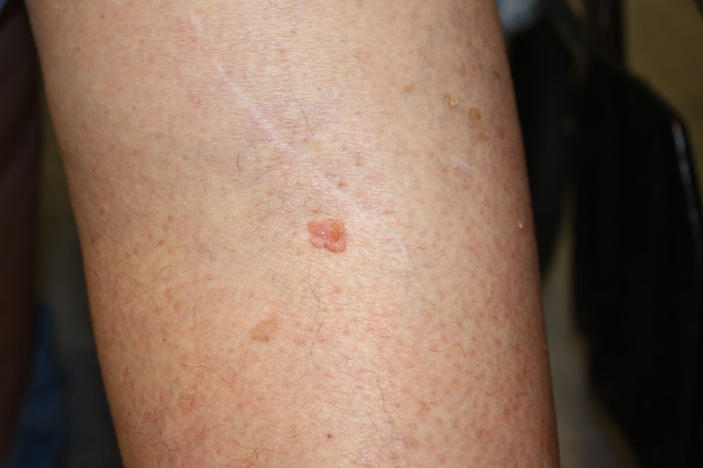 Skin Cancer - Squamous Cell on Arm