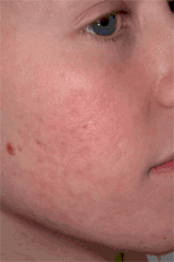 Boy with acne AFTER treatment