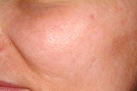 Acne Scars before treatment