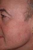 Actinic Keratosis After Treatment