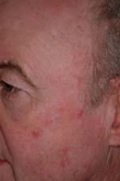 Actinic Keratosis Before Treatment
