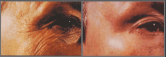 Wrinkles before/after treatment with a retinoid