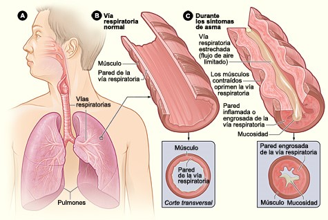 asthma_lung_diagram