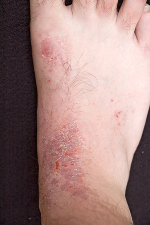 Atopic dermatitis on foot