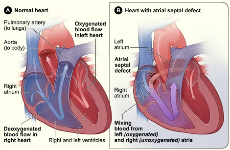 Atrial Septal Defect Anatomy