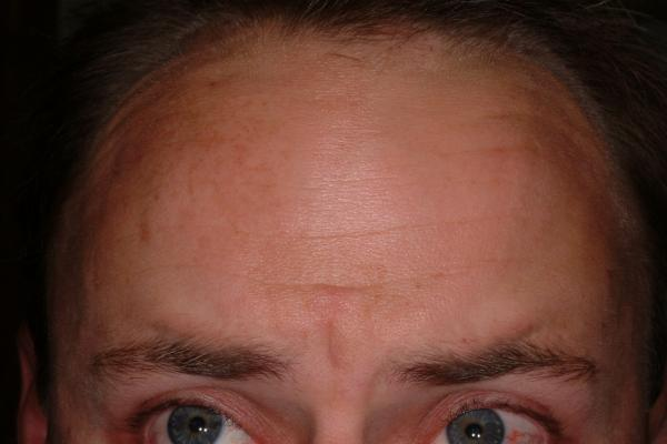 Botox treatment of wrinkles - after