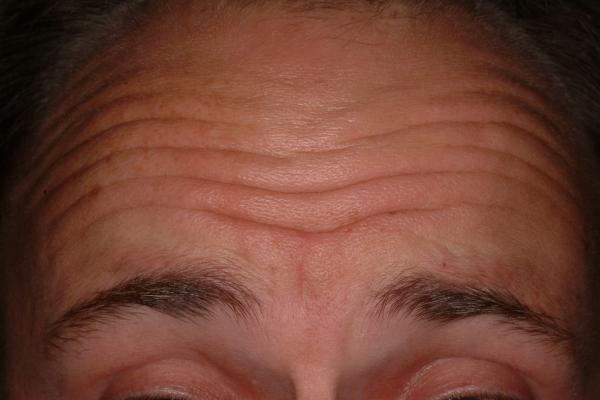 Botox treatment of wrinkles - before