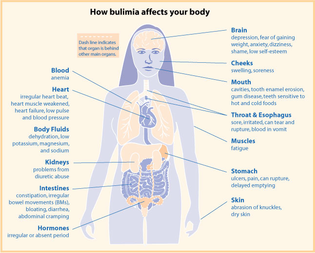 Health consequences of bulimia