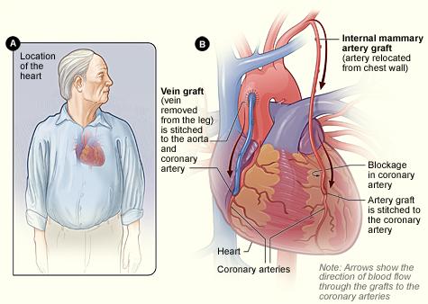 Coronary Artery Bypass Grafting (CABG)