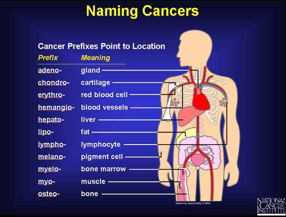 Naming cancer