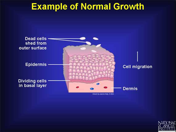 stages of cancer growth