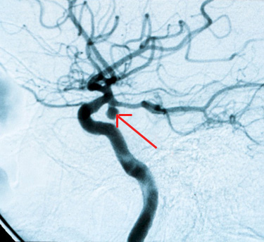 Angiography of the Brain Arteries