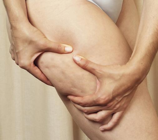 Cellulite fat dimpled skin