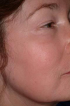 Chemical peels - after treatment