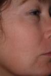 Chemical peels - before treatment
