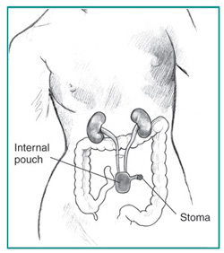 Urology Glossary Terms