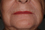 Dermal filler around lips after treatment
