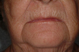 Dermal filler around lips before treatment