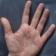 Dyshidrotic Eczema or Pompholyx