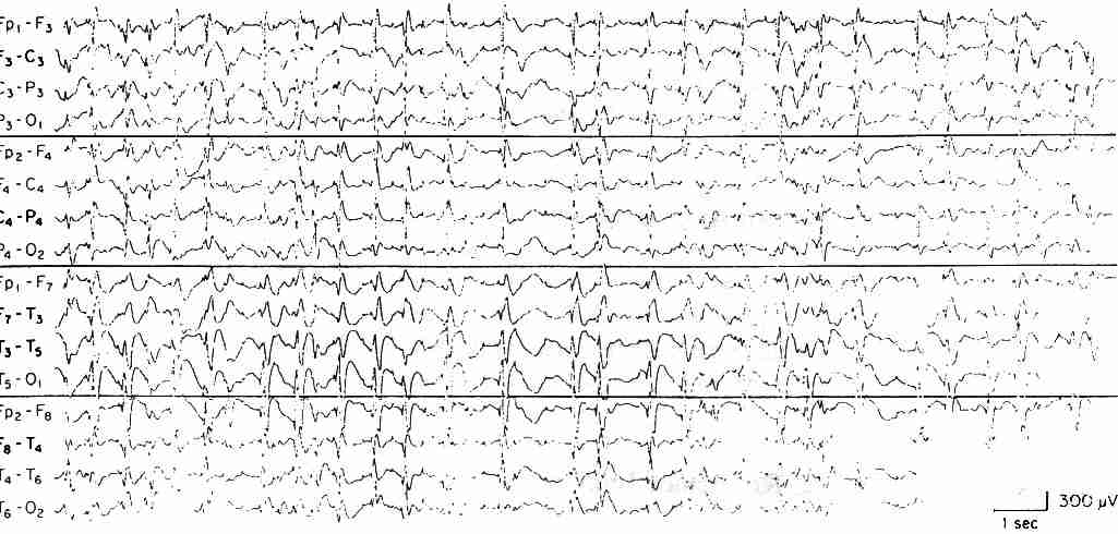 Electronencephalogram (EEG)