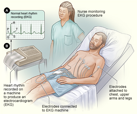 electrocardiogram_ECG.jpg