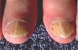 Toenail infection (onychomycosis)