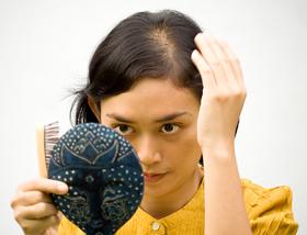Female Hair Loss (Balding)