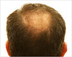 Male Hair Loss (Balding)