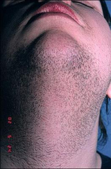 Laser Hair Removal on Chin - Before
