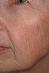 Laser rejuvenation - after treatment