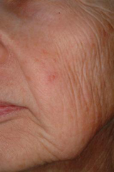 Laser rejuvenation - before treatment