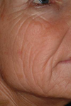 laser resurfacing - before treatment
