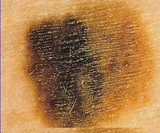 Skin Cancer: Melanoma color