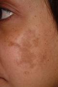 Melasma before treatment