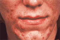 Acne sebaseous glands