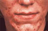 Acne sebaseous glands