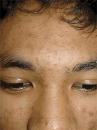 Moderate Acne on Forehead