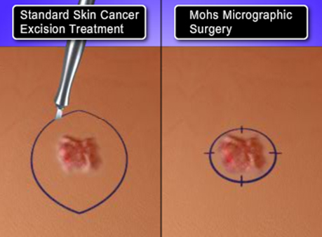 Mohs Surgery compared to standard skin cancer surgery