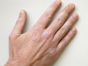 Psoriasis on Hands and Nails