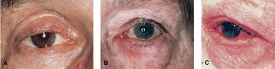 Ocular Rosacea - Rosacea type 4