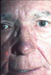 Subtype 3 rosacea after